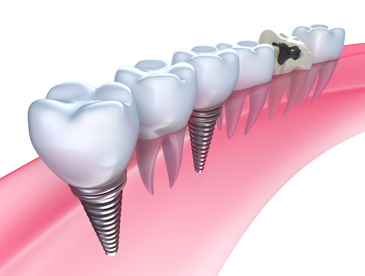 Caring for Teeth with Dental Implants